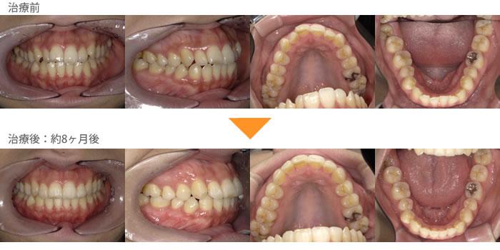 (八重歯の症例16)上下の歯並びが気になる。