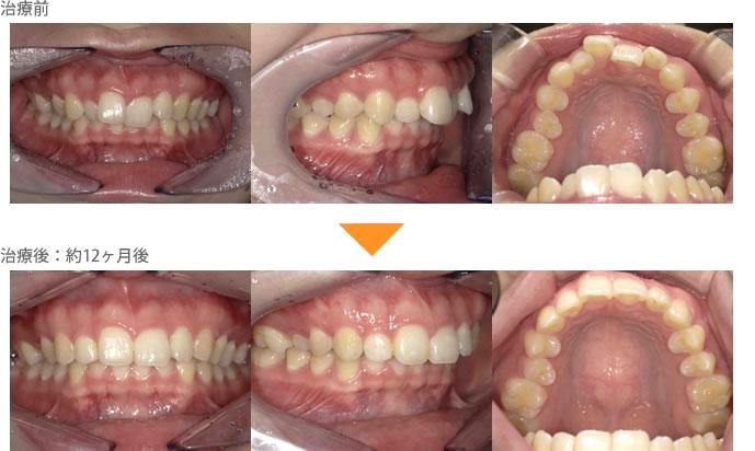 (八重歯の症例18)前歯の歯並びが気になる。ガタガタしている
