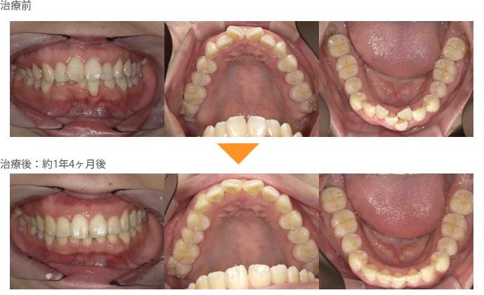 (八重歯の症例19)下の前歯がガタガタしている。1本飛び出ている。上の前歯がねじれていて出っ歯になっている