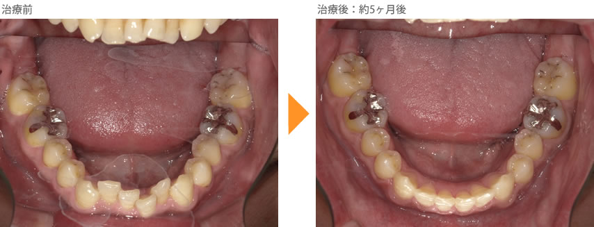 (八重歯の症例22)下の前歯がガタガタしているのが気になる