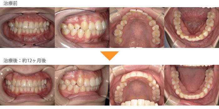 (八重歯の症例23)右上の2番目がへこんでいる。下の前歯がガタガタしているのが気になる