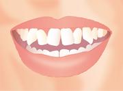 八重歯の症例