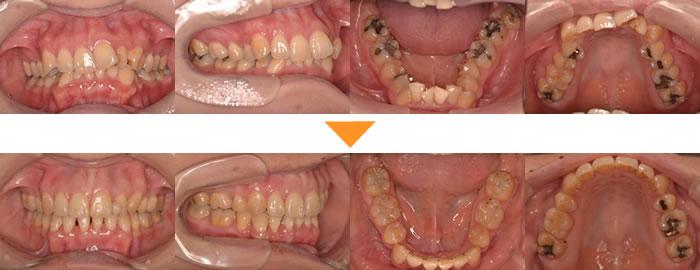 (症例1)歯並びがガタガタ