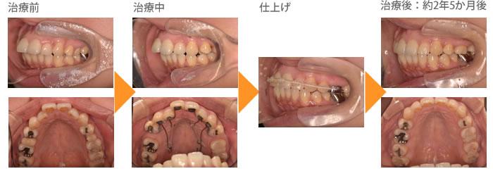 (症例2)上の歯が出ている