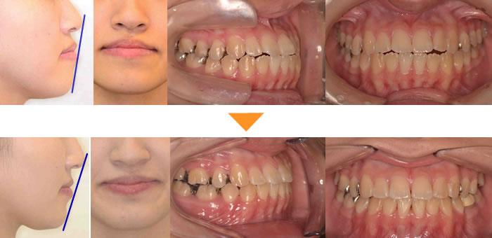 (症例4)下の歯がでている(切端咬合)が気になる