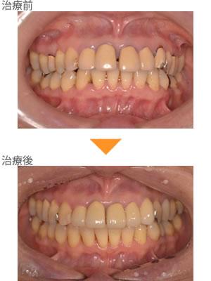 (症例5)上の前歯のすきっぱ。かみにくい。