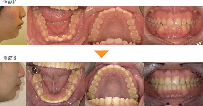(症例6)口元が出ている 下の歯がガタガタしている