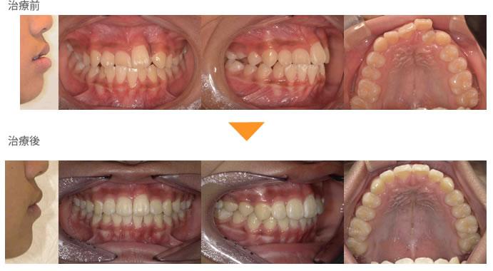 (症例7)前歯の重なりが気になる