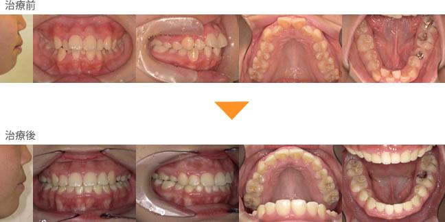 (症例8)口元が出ている でっぱになっている 下の歯がガタガタしている