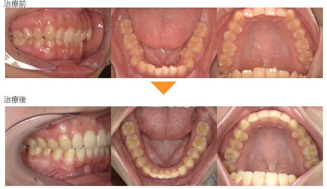(症例9)笑った時に下の歯が見えない