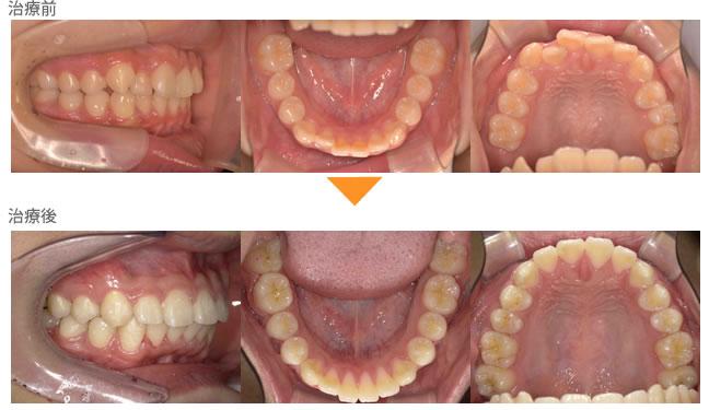 (症例10)前歯がガタガタしている