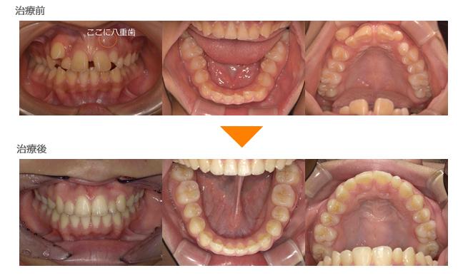 (症例11)犬歯が生えてこない。前歯の歯並びが気になる
