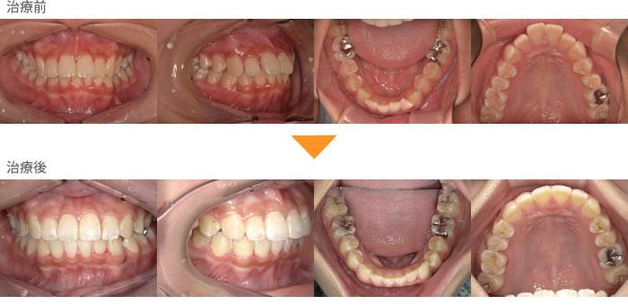 (症例12)前歯が出ている