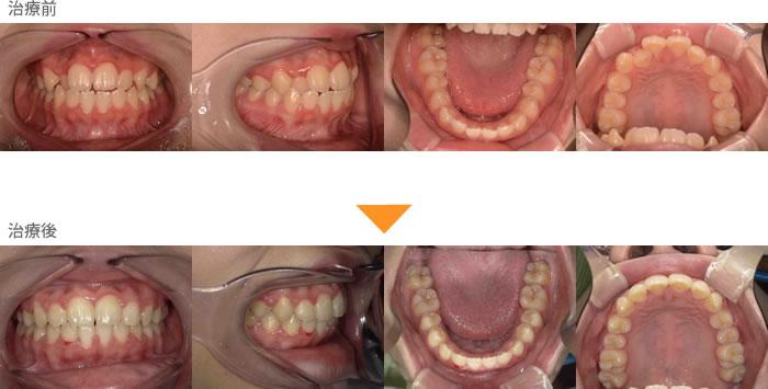 (症例14)右上の歯が引っ込んでいる。左の犬歯がかんでいない。鼻がつまる。