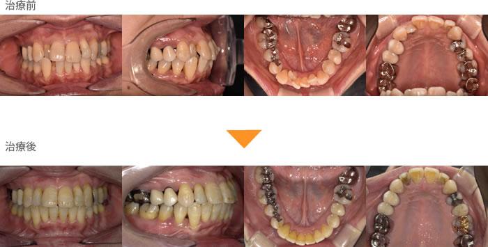(症例15)下の歯がガタガタしている。