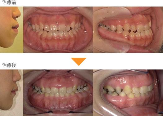 (症例16)下の歯がでている。見た目にが気になる。
