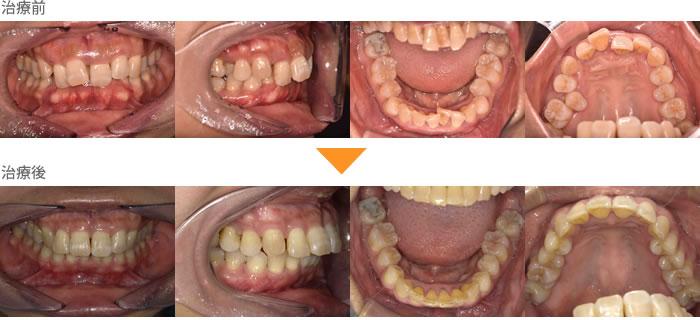 (症例17)前歯が気になる。歯並びが悪い。