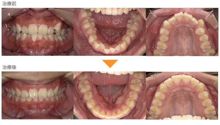 (症例19)左上の八重歯が気になる。