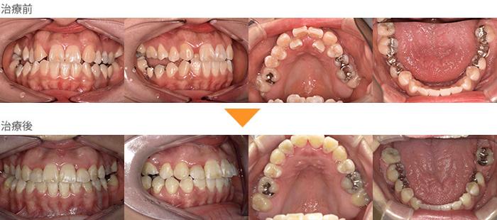 (症例20)前歯の歯並びがガタガタ。奥歯が噛めない