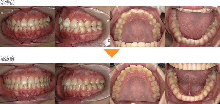 (症例22)上下の歯がガタガタしている