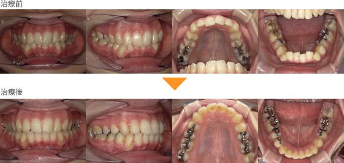 (症例23)上下の歯がガタガタしている