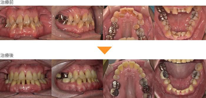 (症例24)口の中が狭い。上下の歯がガタガタしている