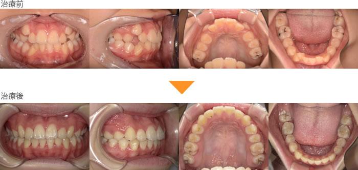 (症例25)八重歯が気になる。歯並びが気になる