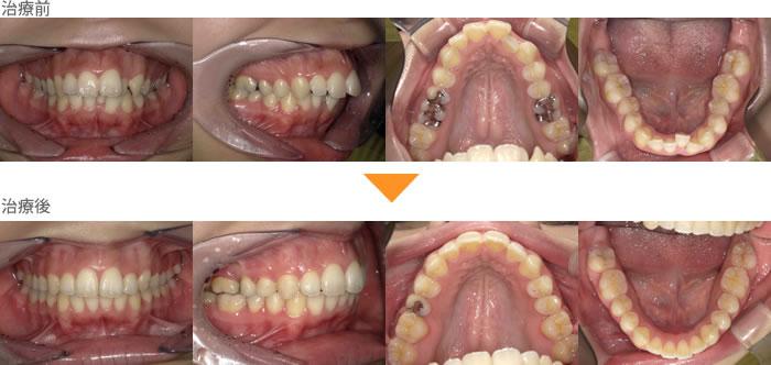 (症例26)上の前歯が出ていて、口が閉じづらい
