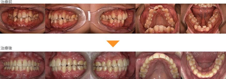 (症例27)歯並びが気になる。鼻がつまっている。