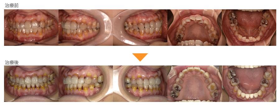 (症例28)歯並びが気になる。歯石がつきやすい。歯磨きしにくい。