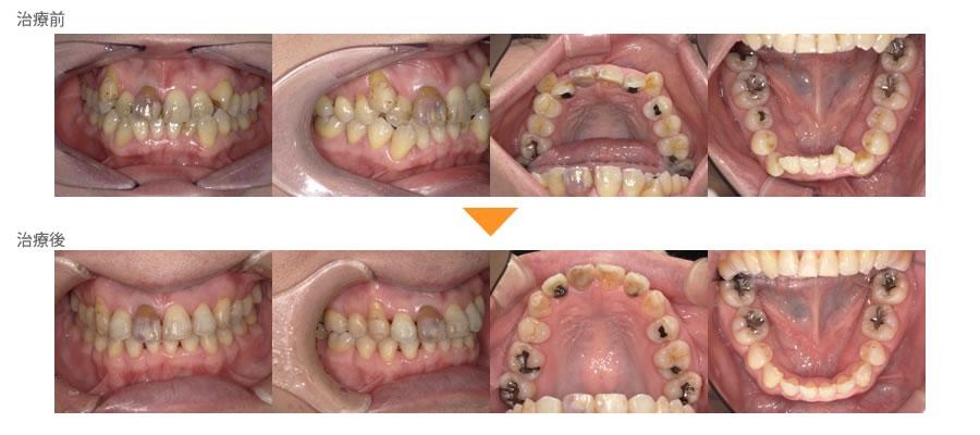 (症例29)歯並びが気になる。右上の犬歯(糸切り歯)が邪魔。