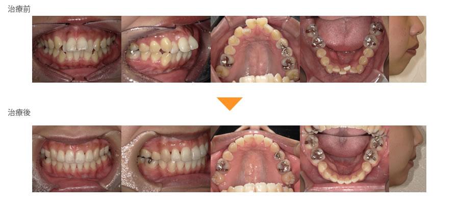 (症例30)上下の歯がガタガタしている。