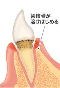 歯槽骨が壊れている